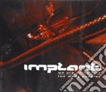 Implant - We Are Doing Fine cd musicale di Implant
