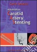 Advances in carotid artery stenting